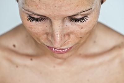 lunares en la piel